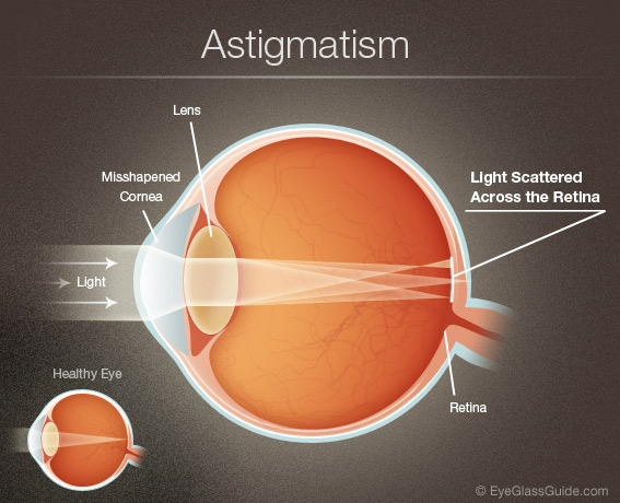 astigmatism symptoms | astigmatism eyeglasses | eyeglass guide, Skeleton
