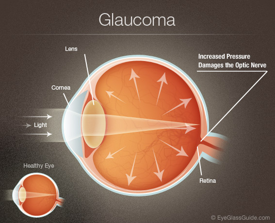 Glaucoma Symptoms | EyeGlass Guide