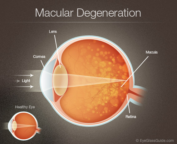 Macular Degeneration Symptoms Eyeglass Guide
